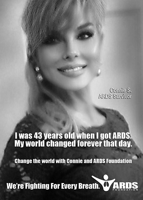 Connie ARDS Survivor