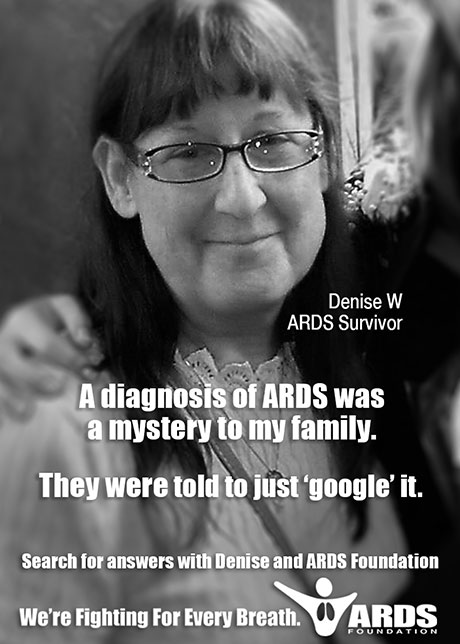 Denise ARDS Survivor